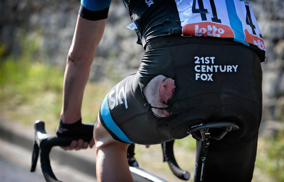 Chris Froome vom Sturz gekennzeichnet (Foto: Roth&Roth roth-foto.de)